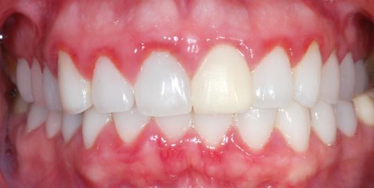 periodoncia imagen principal